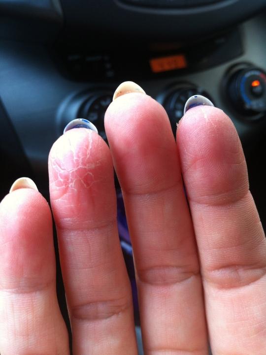 Understanding Eczema